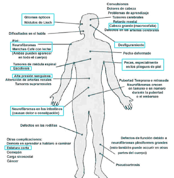 neurofribomatosis sintomas
