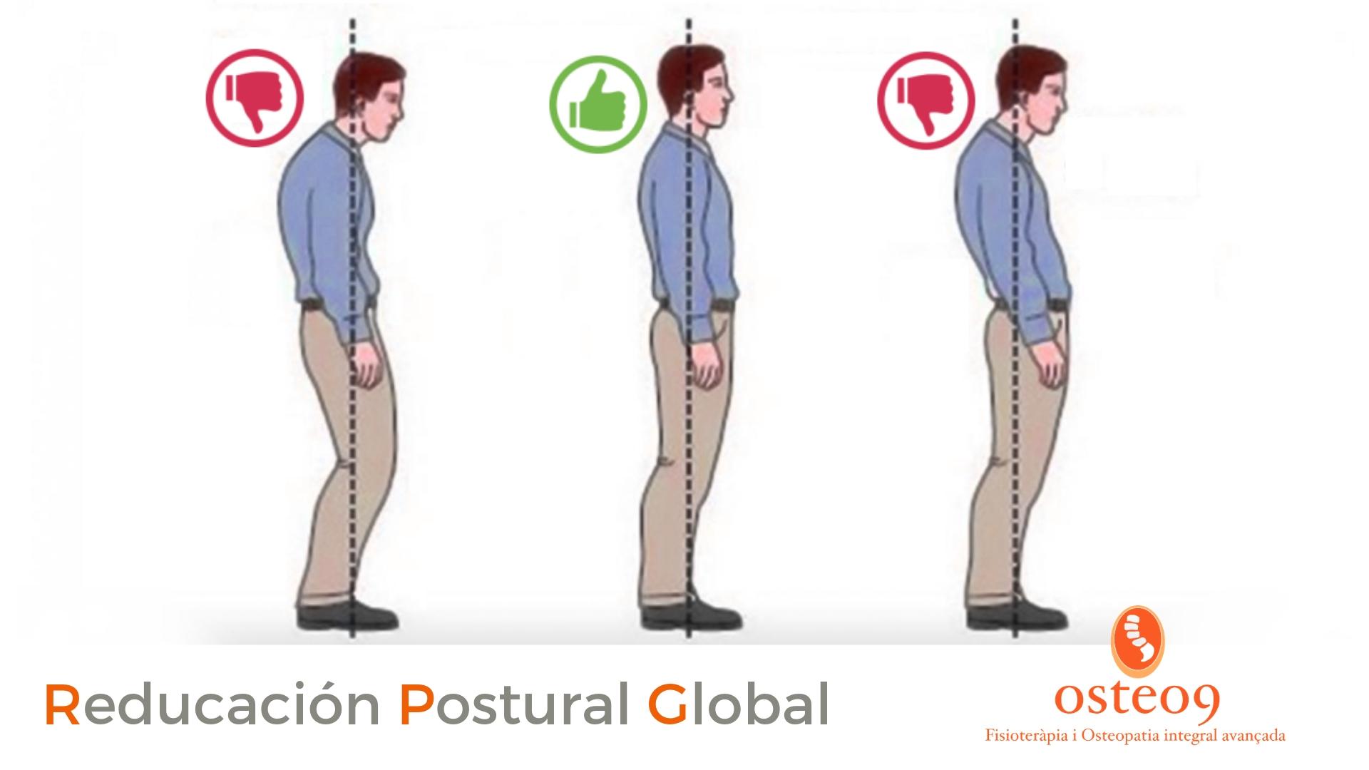 Cómo mejorar la postura con reeducación postural global