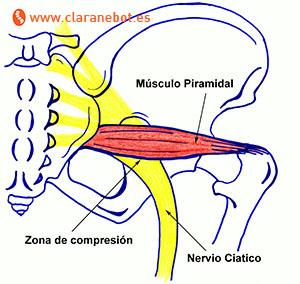 Síndrome del piramidal y su relación con el nervio ciático