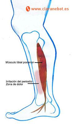 tibial posterio periostitis tibial