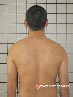 tratamiento de posturologia y podologia
